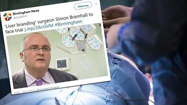 Simon Barmhall przeszczepiał wątroby i wypalał na nich swoje inicjały