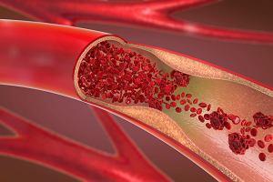 Naukowcy odkryli mechanizm wapnienia tętnic. To nadzieja na zapobieganie demencji, udarom i zawałom serca