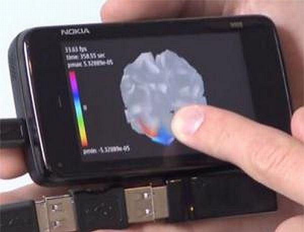 Przenośny skaner mózgu dla Nokii N900