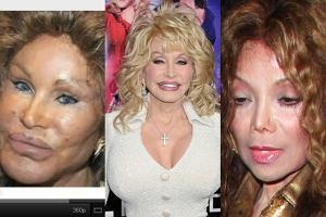 Jocelyn Wildenstein, Dolly Parton i La Toya Jackson.