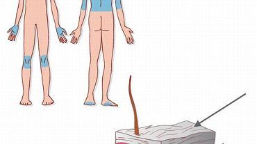 Zmiany łuszczycowe zwykle obejmują łokcie, kolana, pośladki, a także brzuch czy nadgarstki