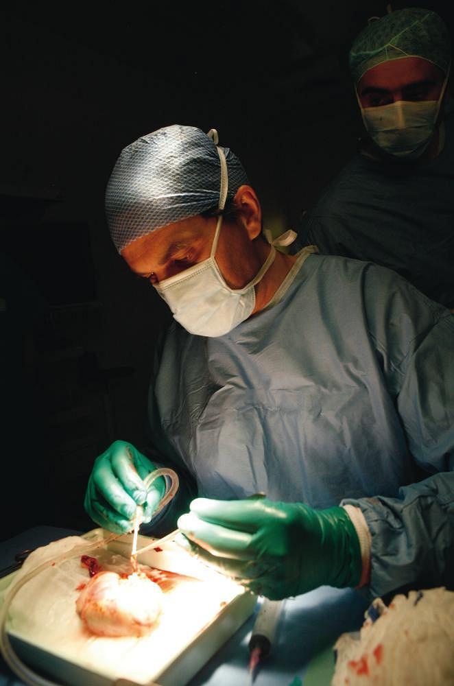 Pobranie narządu do przeszczepu. Zdjęcie przedstawia chirurga przemywającego nerkę po jej pobraniu od dawcy