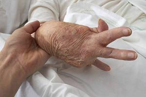 Reumatoidalne zapalenie stawów RZS