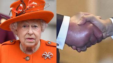Tajemnicza choroba w rodzinie królewskiej. Opuchnięte dłonie królowej Elżbiety II i księcia Karola zaniepokoiły poddanych