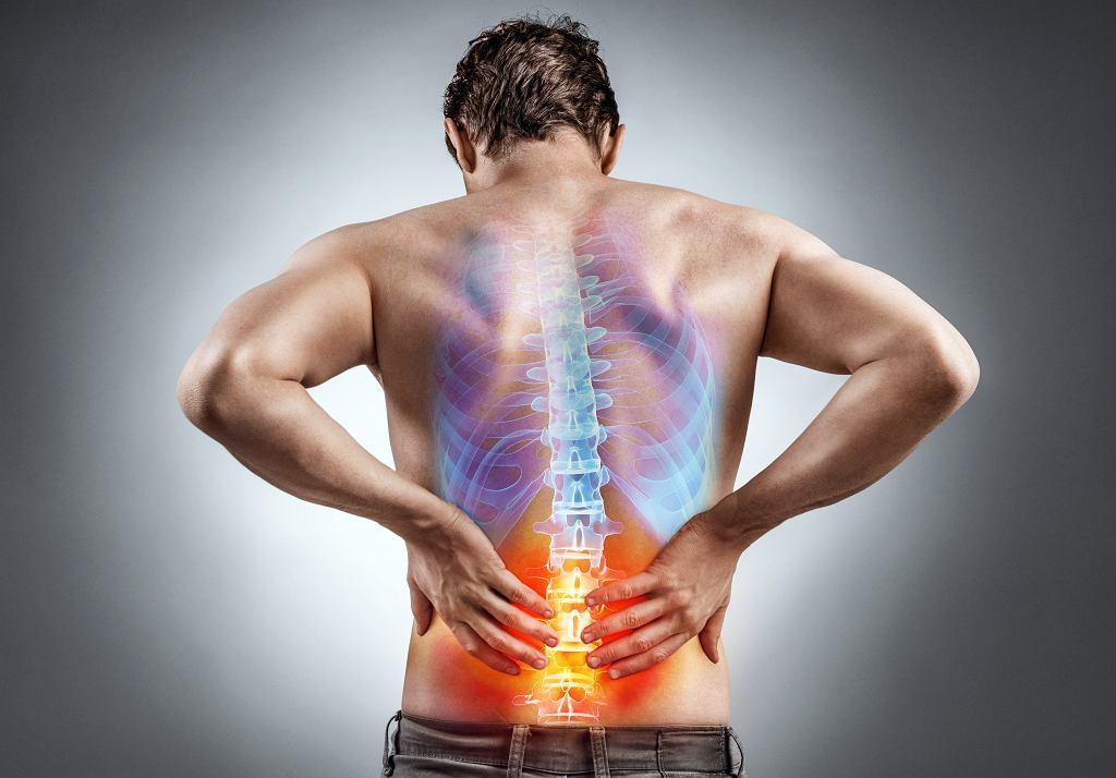 Rwa kulszowa powoduje silny ból pleców. Zdjęcie ilustracyjne