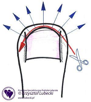 Nieprawidłowe obcinanie paznokci u nóg - 'na okrągło'.
