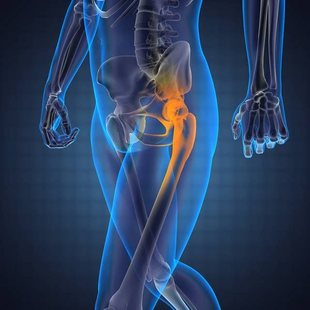 Nie rozpoczęte w porę leczenie zwyrodnienia stawu biodrowego może prowadzić do trwałego kalectwa