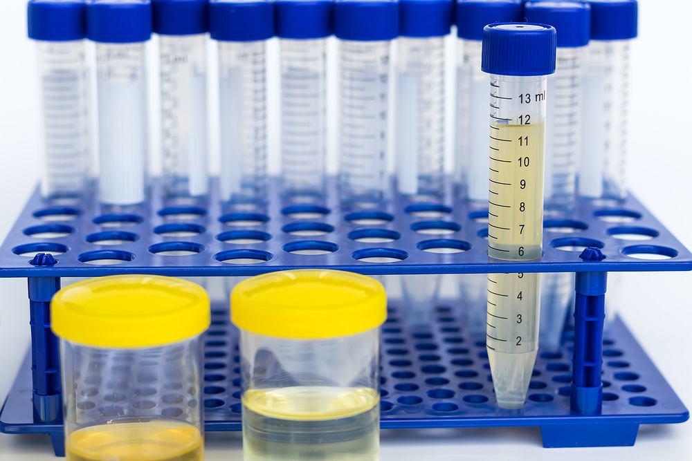 Białko w moczu wykrywa się w standardowym badaniu uryny. U zdrowego pacjenta badanie nie powinno wykazywać obecności białka, jednak jednorazowa obecność białka w moczu nie zawsze świadczy o poważnej chorobie