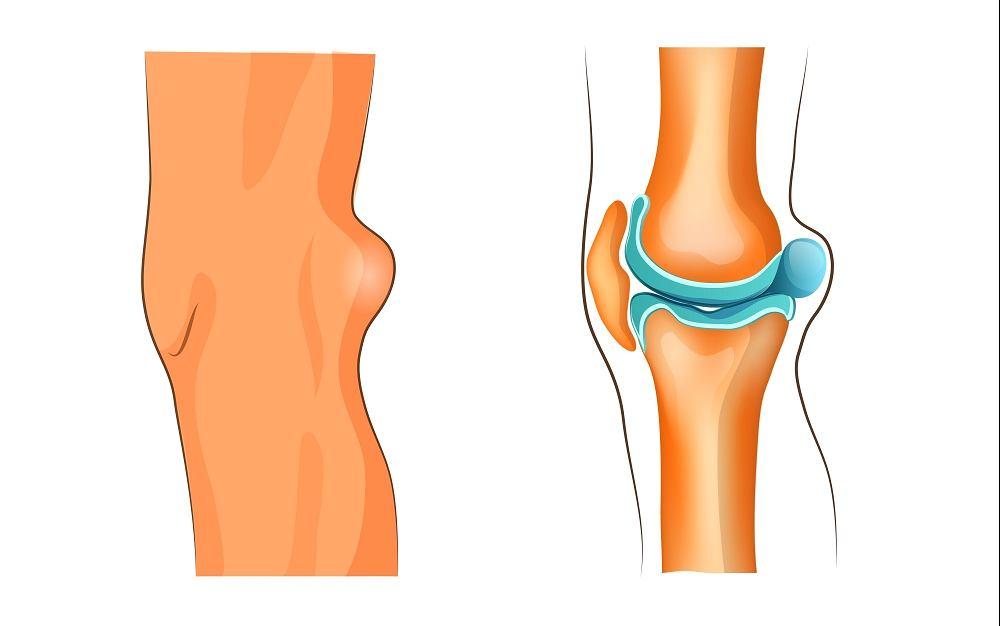 Torbiel Bakera to niewielki, łagodny guzek, który pojawia się tuż pod kolanem
