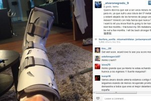 Premier League. Alvaro Negredo złamał kość w stopie