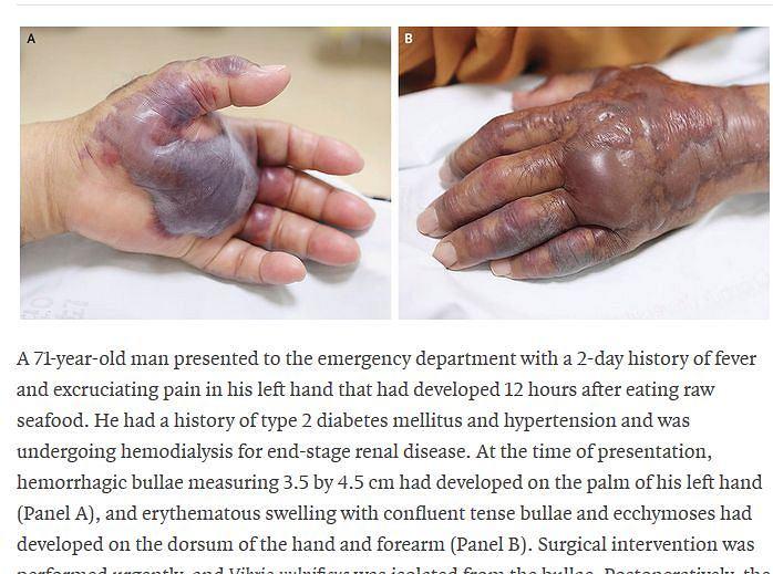 Mężczyzna zjadł sushi i został zainfekowany bakterią Vibrio vulnificus