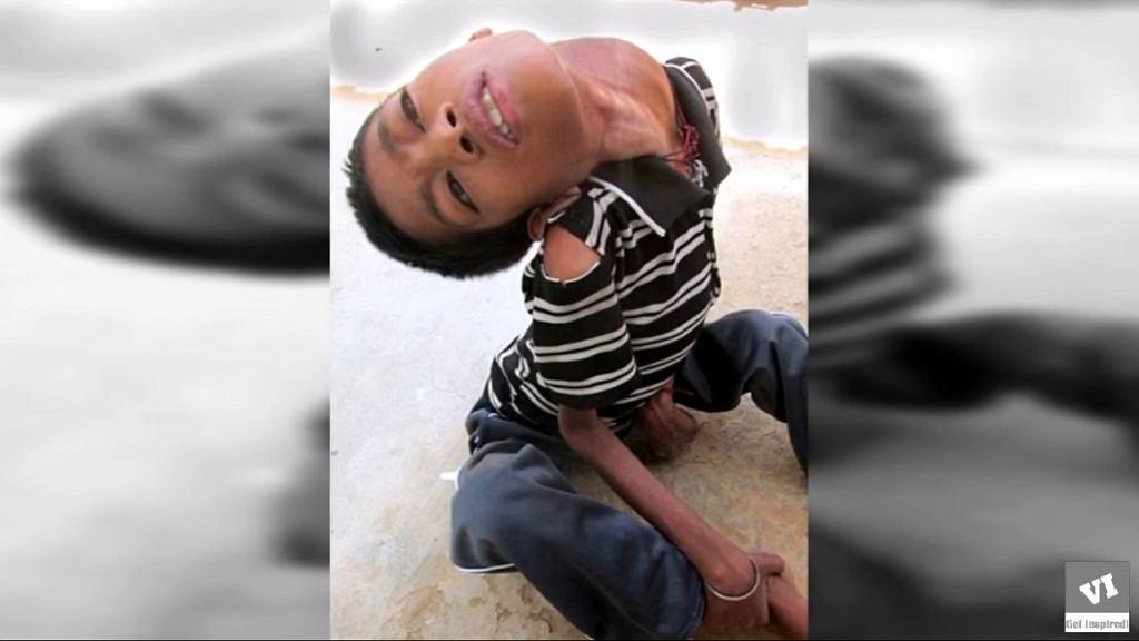 Mahendra Ahirwar przed operacją