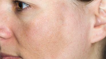 Ostuda, nazywana także melanodermią to przebarwienie na skórze, które pojawia się przede wszystkim u kobiet w okresie rozrodczym