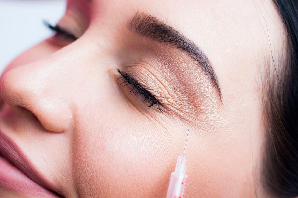 Toksyna botulinowa podana w odpowiednich proporcjach i pod okiem lekarza staje się lekiem, a także remedium na upływający czas i zmarszczki