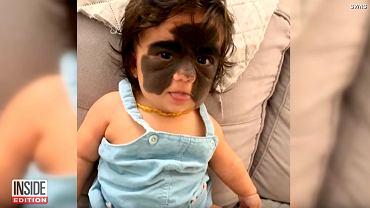 Dziewczynka ma znamię na twarzy. Wygląda jak w masce Batmana