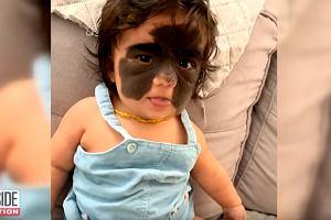 """Twarz dziewczynki wygląda jak w """"masce Batmana"""".Lekarze z Rosji przeprowadzili operację"""