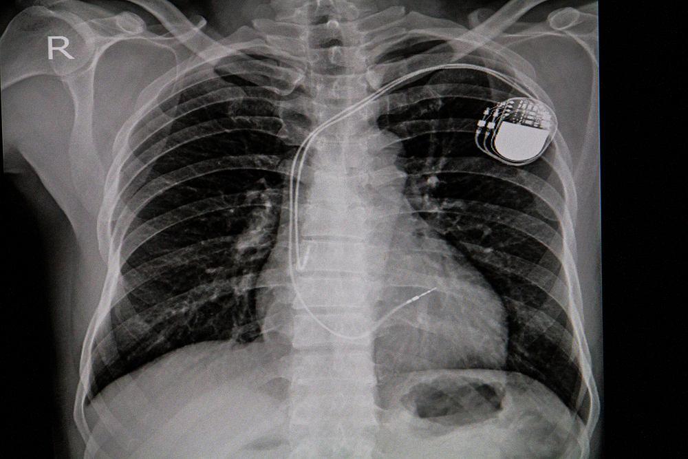 Stymulator serca, inaczej zwany rozrusznikiem serca, może przejąć funkcję generowania impulsów do kurczenia się mięśnia sercowego.