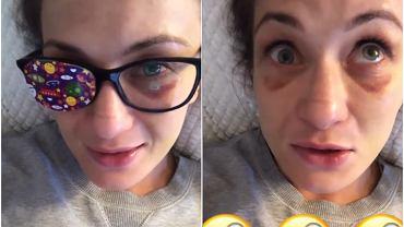 Karolina Kowalkiewicz pokazała kontuzjowane oko