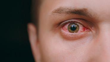 Wylew krwi do oko często spowodowany jest przez szkła kontaktowe.