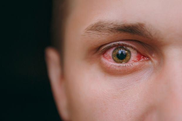 Wylew krwi do oka: jakie są przyczyny i co może oznaczać?