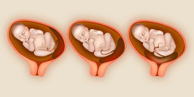 Ułożenie łożyska w ciąży - jakie ma znaczenie dla przebiegu ciąży i porodu?