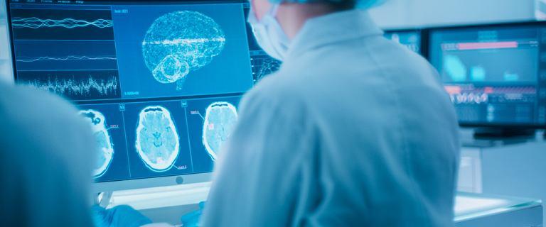 Nawet łagodny COVID-19 powoduje zmiany w mózgu. Nie wiadomo czy są odwracalne