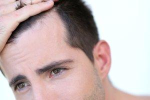 Przeszczep włosów: nowa, lepsza metoda