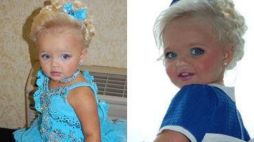 Gdy miała dwa latka, świat okrzyknął ją żywą lalką Barbie. Tak wygląda po latach