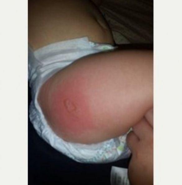 Metalowy element zapięcia fotelika samochodowego poparzył dziecko
