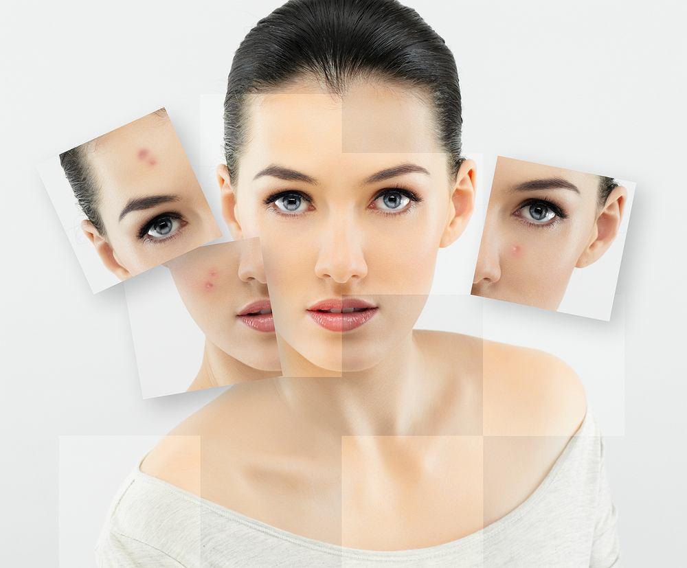 Alergia pokonana kosmetykiem? Jak sobie radzić ze skórą atopową?