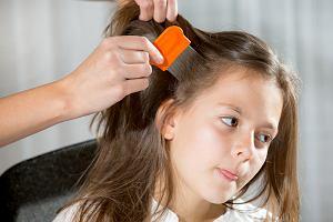 Plaga żłobków i przedszkoli. Jak chronić dziecko przed wszawicą?