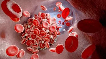 Zakrzep krwi w naczyniu krwionośnym (zdjęcie ilustracyjne)