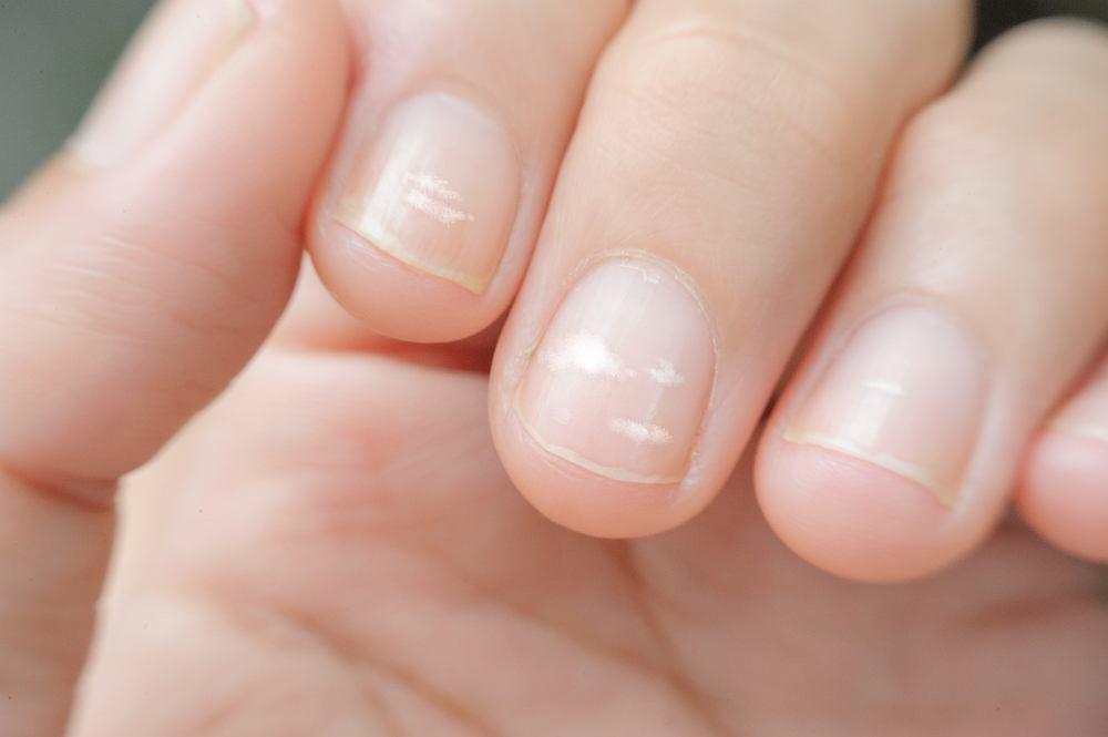 Białe paznokcie - bielactwo punktowe - kwitnienie paznokcia; płytkę pokrywają wówczas drobne białe punkciki. Bywa tak często na skutek urazu płytki paznokcia.