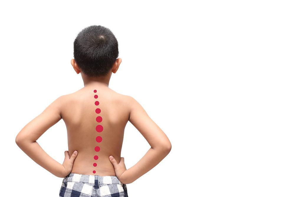 Wady postawy u dzieci to m.in. te związane z kręgosłupem - chociażby jego boczne skrzywienie, czyli skolioza.