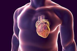 Zapalenie mięśnia sercowego: przyczyny, objawy, leczenie