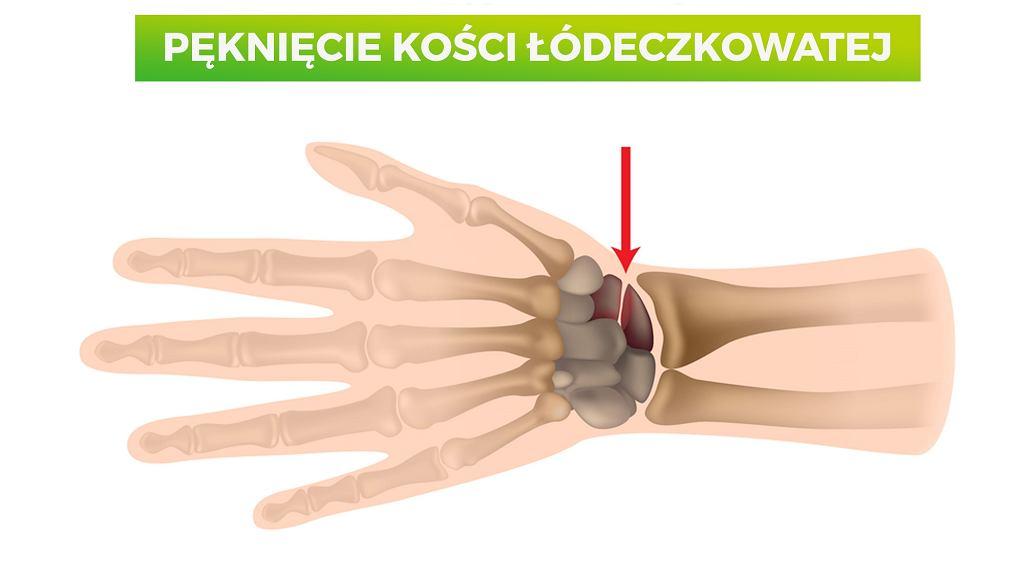Kość łódeczkowata zazwyczaj łamie się podczas upadku, gdy poszkodowany upada lub próbuje się podeprzeć na wyprostowanym lub zgiętym grzbietowo nadgarstku