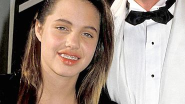 Shakira była brunetką, a Angelina Jolie nosiła aparat na zębach. Te gwiazdy wyglądały zupełnie inaczej, nim stały się sławne