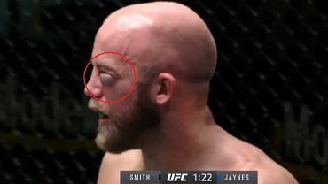 Koszmarna kontuzja na gali UFC