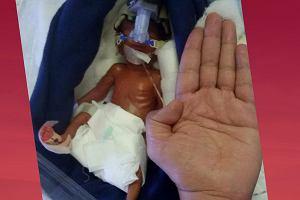 Jeden z najmniejszych wcześniaków na świecie wypisany ze szpitala. Pół roku temu nie dawano mu żadnych szans