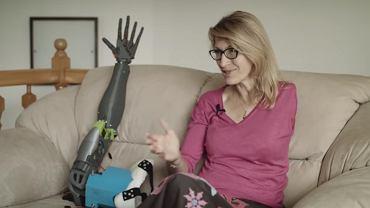 Gimnazjalista wydrukował protezę dla niepełnosprawnej nauczycielki
