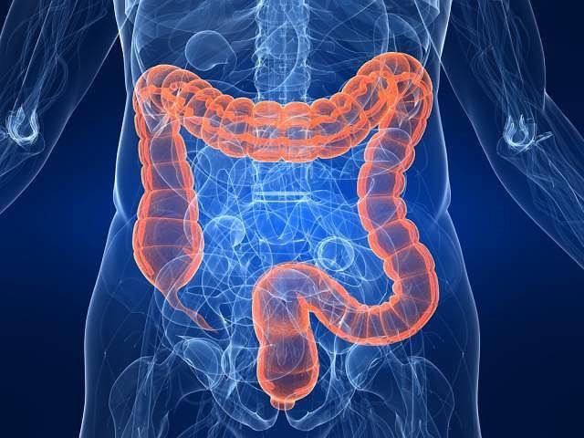 Raki jelita grubego, rozpoznane w bardzo wczesnych stadiach, są wyleczalne niemal w 100 proc.