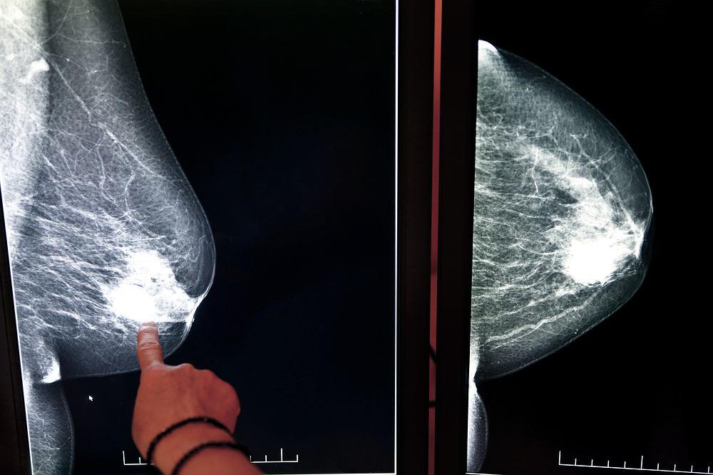 Zdaniem badaczy z Wielkiej Brytanii istnieje ścisły związek pomiędzy tym, czy lepiej funkcjonujemy rano, czy też wieczorem, a rakiem piersi