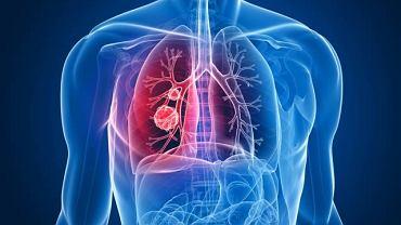 Rak płuca to jeden z częściej występujących nowotworów złośliwych