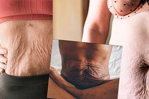 Nieodrealniony obraz macierzyństwa. Mamy pokazują, jak zmieniają się ich ciała po ciąży i porodzie