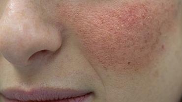 Pimafucort to preparat występujący w postaci kremu lub maści. Lek przeznaczony jest do stosowania bezpośrednio na skórę objętą chorobową zmianą.