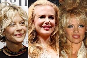 Meg Ryan, Nicole Kidman, Pamela Anderson po operacjach plastycznych.