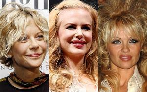 Meg Ryan, Nicole Kidman, Pamela Anderson po operacjach plastycznych
