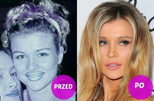 Zdjęcie numer 1 w galerii - Joanna Krupa ponoć jedynie poprawiała piersi. A co z twarzą? Mamy wątpliwości czy to