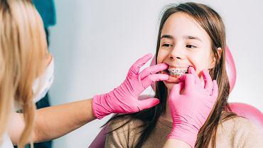 Ortodonta to lekarz zajmujący się leczeniem wad zgryzu