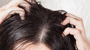 Stosowanie wcierek na porost włosów może powodować łupież. Sprawdź, jak się przed tym uchronić (zdjęcia ilustracyjne)